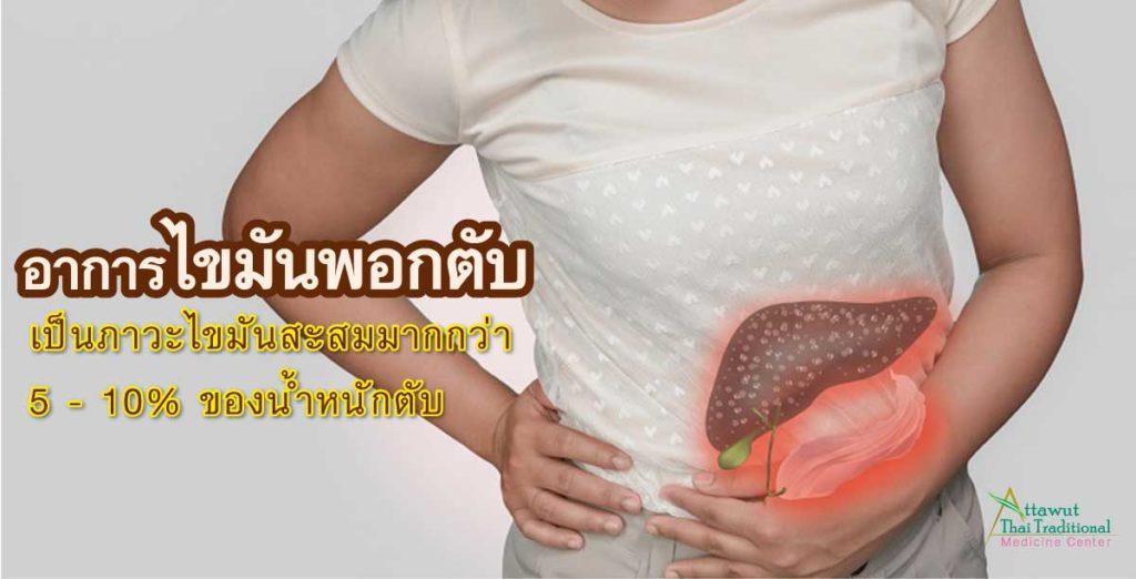 อาการไขมันพอกตับเป็นภาวะไขมันสะสม มากกว่า 5 - 10% ของน้ำหนักตับ
