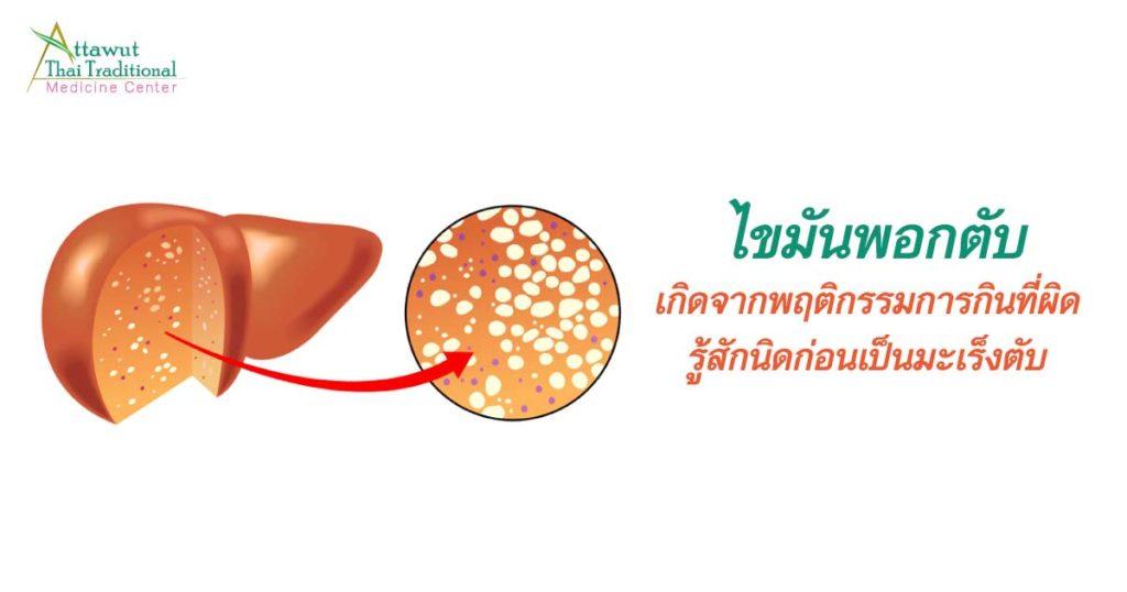 ไขมันพอกตับเกิดจาก การกินแบบผิดๆ รู้สักนิดก่อนเป็นมะเร็งตับ