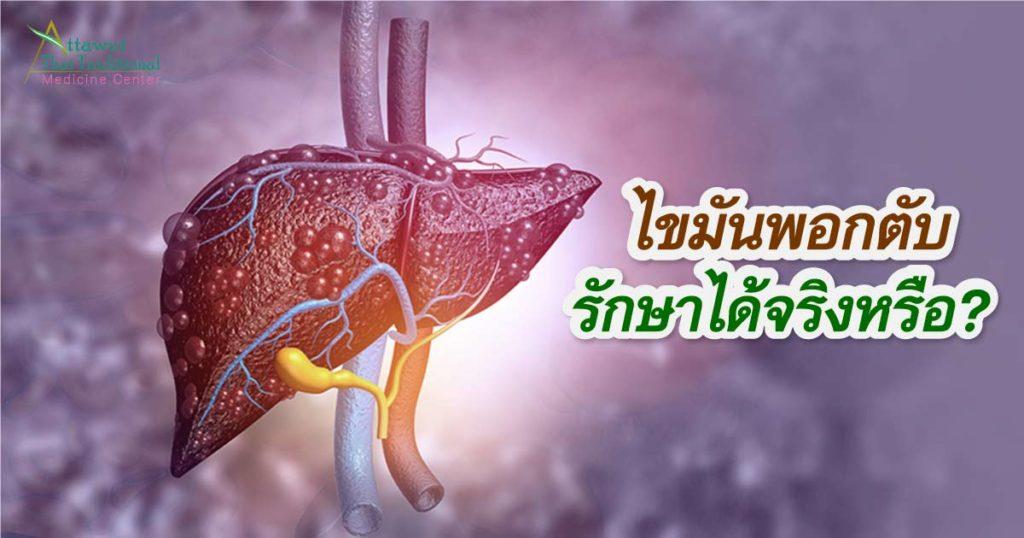 ไขมันพอกตับรักษาได้จริงหรือ?