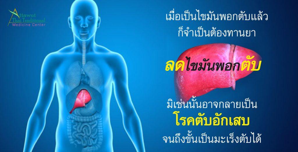 เมื่อเป็นไขมันพอกตับแล้วก็จำเป็นต้องทานยาลดไขมันพอกตับ มิเช่นนั้นอาจกลายเป็นโรคตับอักเสบจนถึงขั้นเป็นมะเร็งตับได้