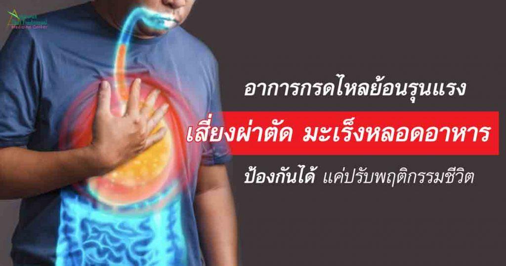 อาการกรดไหลย้อนรุนแรง เสี่ยงผ่าตัด มะเร็งหลอดอาหาร ป้องกันได้แค่ปรับพฤติกรรมชีวิต