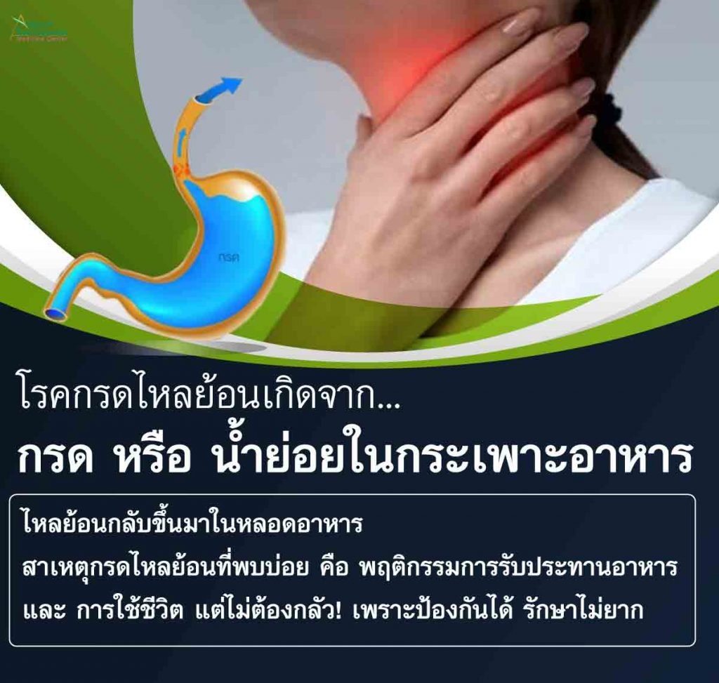 โรคกรดไหลย้อนเกิดจากกรดหรือน้ำย่อยในกระเพาะอาหาร ไหลย้อนกลับขึ้นมาในหลอดอาหาร สาเหตุกรดไหลย้อนที่พบบ่อย คือ พฤติกรรมการรับประทานอาหารและการใช้ชีวิต  ไม่ต้องกลัว! เพราะป้องกันได้และรักษาไม่ยาก