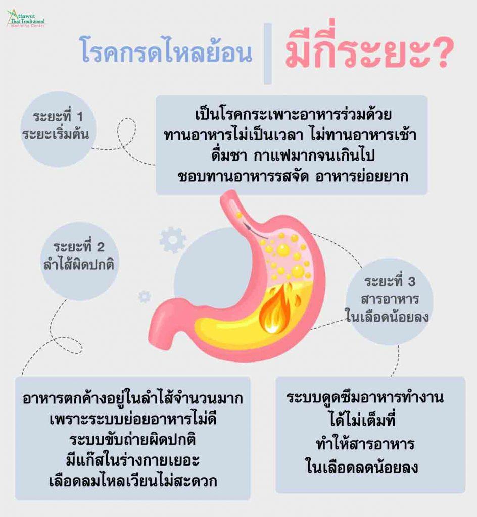 โรคกรดไหลย้อน มีกี่ระยะ?  ระยะที่ 1 : ระยะเริ่มต้น มักเป็นโรคกระเพาะอาหารร่วมด้วย เพราะโรคกรดไหลย้อนเกิดจาก การรับประทานอาหารไม่เป็นเวลา ไม่ทานอาหารเช้า ดื่มชา กาแฟมากจนเกินไป ชอบทานอาหารรสจัด อาหารย่อยยาก อาหารแปรรูป เช่น ไส้กรอก เบคอน อาหารแช่แข็ง บะหมี่กึ่งสำเร็จรูป เป็นต้น ระยะที่ 2 : ลำไส้ผิดปกติ ระยะนี้โรคกรดไหลย้อนเกิดจากมีอาหารตกค้างอยู่ในลำไส้จำนวนมาก เพราะระบบย่อยอาหารไม่ดี ระบบขับถ่ายผิดปกติ จุลินทรีย์ไม่ดีสะสมในร่างกายจำนวนมาก มีแก๊สในร่างกายเยอะ เลือดลมไหลเวียนไม่สะดวก ระยะที่ 3 : สารอาหารในเลือดน้อยลง ระยะนี้กรดไหลย้อนเกิดจากการรักษากรดไหลย้อนผิดวิธี เป็นกรดไหลย้อนบ่อย แล้วปล่อยไว้นาน ไม่รับการรักษา ทำให้ระบบย่อยอาหารไม่ดีสะสมเป็นเวลานาน ระบบดูดซึมอาหารทำงานได้ไม่เต็มที่ ทำให้สารอาหารในเลือดลดน้อยลง