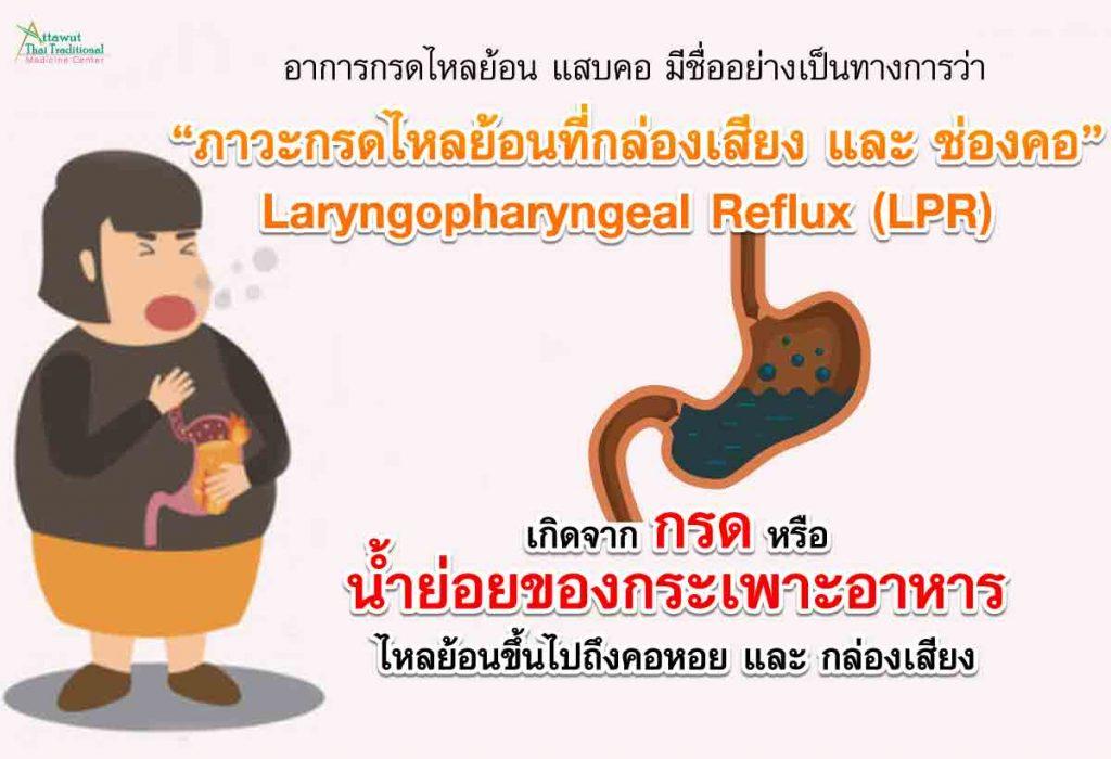 """อาการกรดไหลย้อน แสบคอ มีชื่ออย่างเป็นทางการว่า """"ภาวะกรดไหลย้อนที่กล่องเสียงและช่องคอ"""" Laryngopharyngeal Reflux (LPR)  เกิดจาก กรด หรือ น้ำย่อยของกระเพาะอาหาร ไหลย้อนขึ้นไปถึงคอหอย และ กล่องเสียง"""