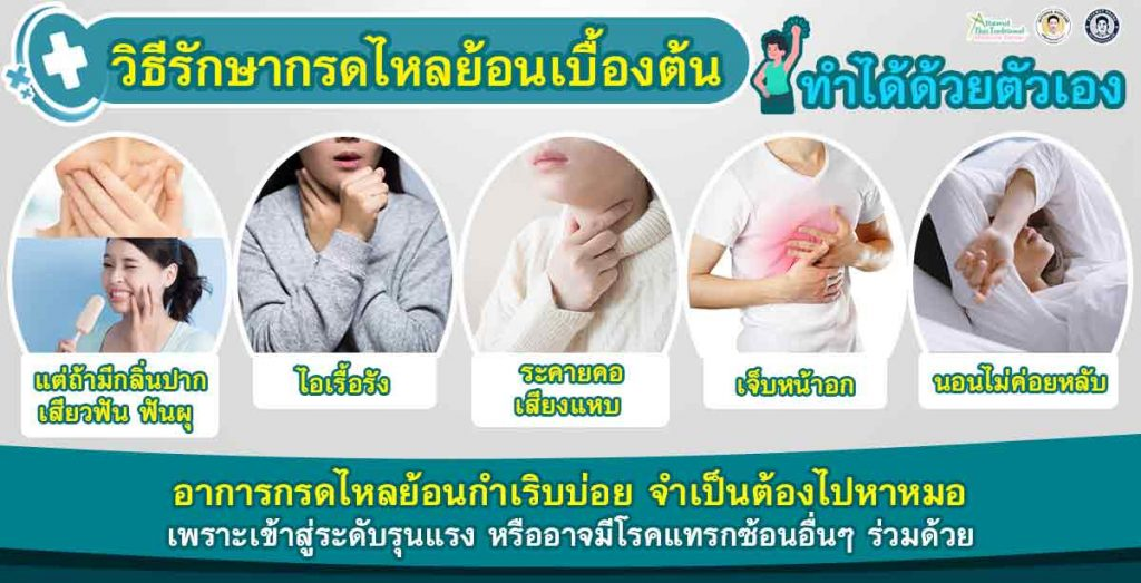 วิธีรักษากรดไหลย้อนเบื้องต้น ทำได้ด้วยตัวเอง แต่ถ้ามีกลิ่นปาก เสียวฟัน ฟันผุ ไอเรื้อรัง ระคายคอ เสียงแหบ เจ็บหน้าอก นอนไม่ค่อยหลับ อาการกรดไหลย้อนกำเริบบ่อย ก็จำเป็นต้องไปหาหมอ เพราะเข้าสู่ระดับรุนแรง หรืออาจมีโรคแทรกซ้อนอื่นๆ ร่วมด้วย