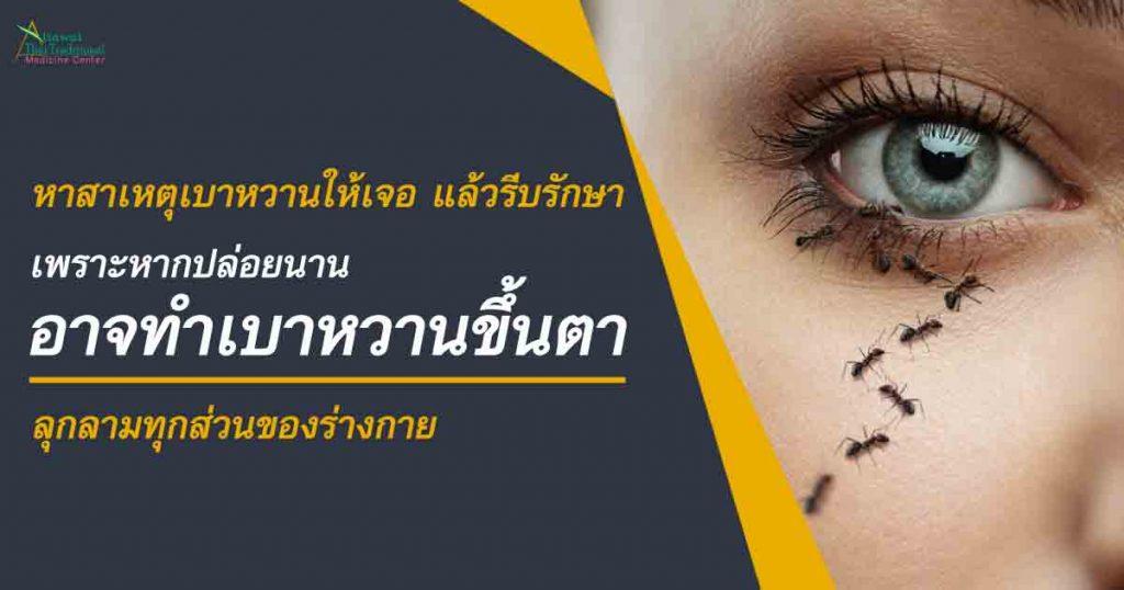 หาสาเหตุเบาหวานให้เจอ แล้วรีบรักษา เพราะหากปล่อยนาน อาจทำเบาหวานขึ้นตา ลุกลามทุกส่วนของร่างกาย