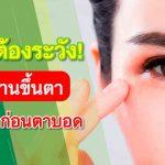 ภัยร้ายต้องระวัง! เบาหวานขึ้นตา รีบรักษา ก่อนตาบอด