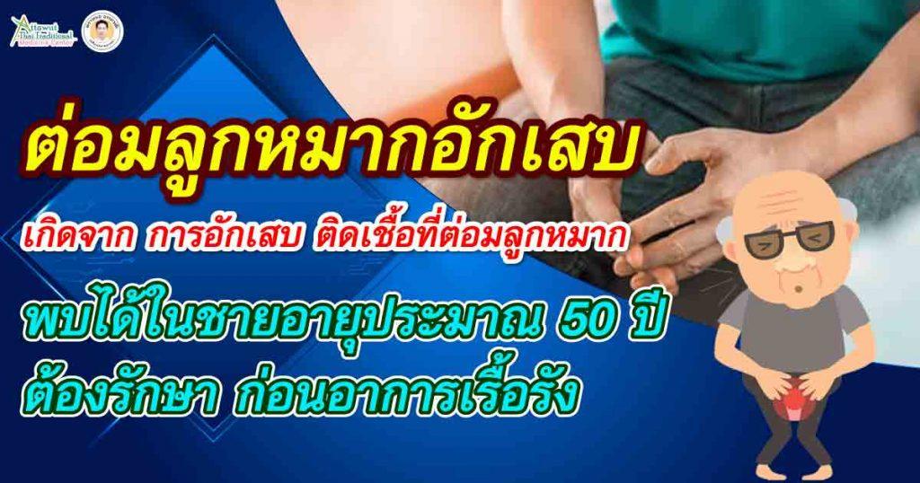 ต่อมลูกหมากอักเสบ เกิดจาก การอักเสบ ติดเชื้อที่ต่อมลูกหมาก พบได้ในชายอายุประมาณ 50 ปี ต้องรักษา ก่อนอาการเรื้อรัง